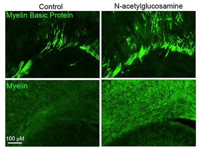 acetilglucosamina para reparar la mielina.jpg